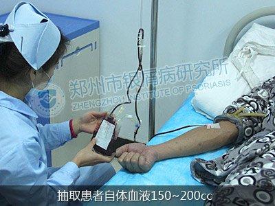 蓝氧自体免疫激活疗法