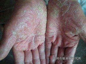 银屑病复发的因素有哪些
