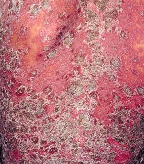 引起牛皮癣的病因都有哪些